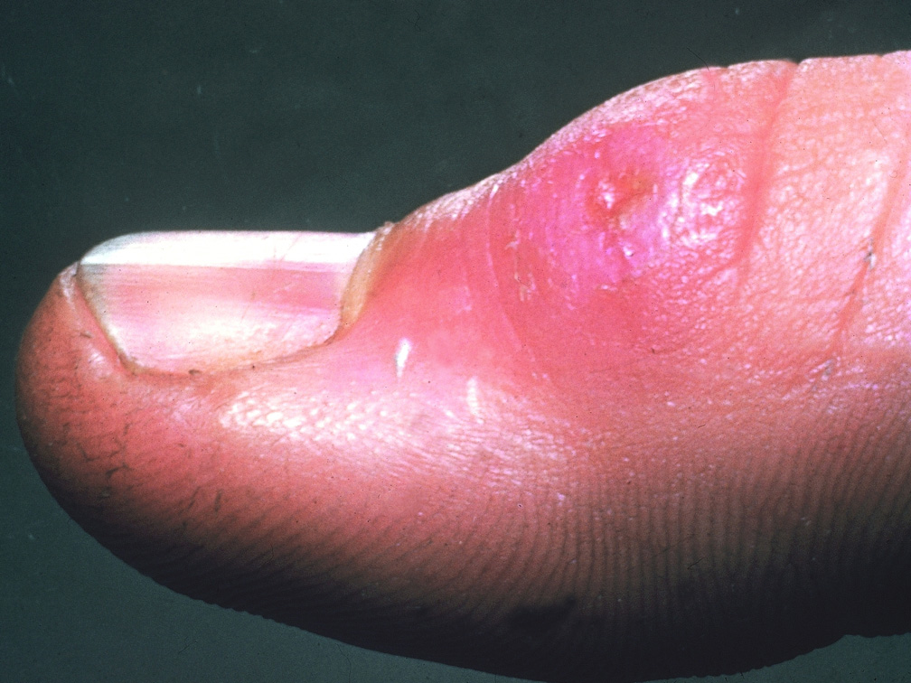 Заболевание туляремия