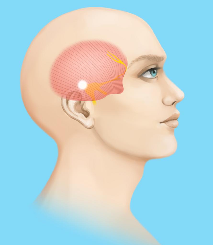 Таблетки от головной боли в висках