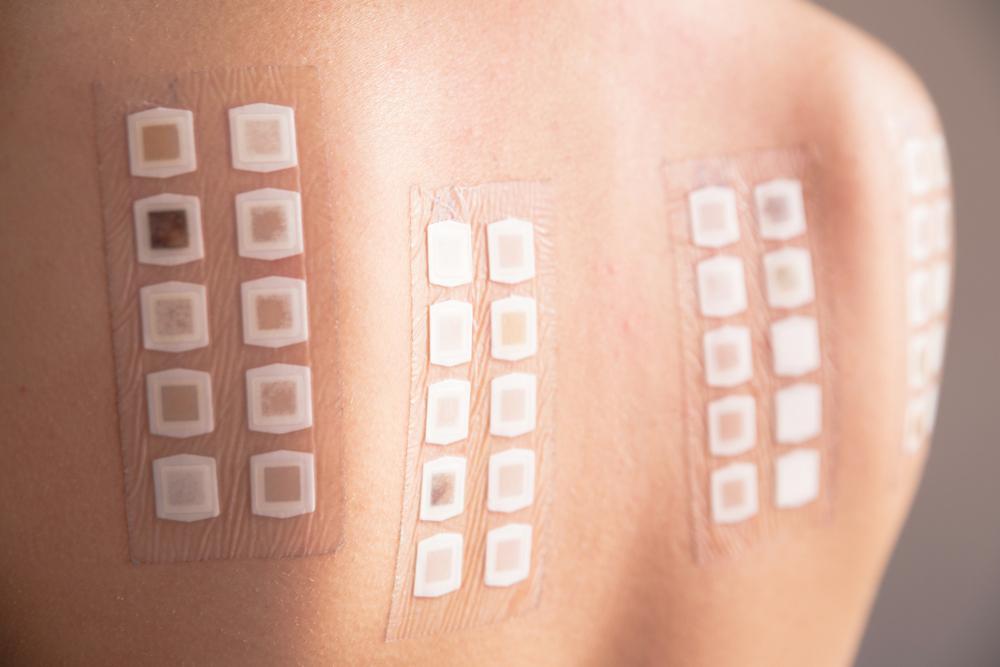 Какой анализ нужно сдать на выявление аллергии Типы исследований расшифровка и правила подготовки