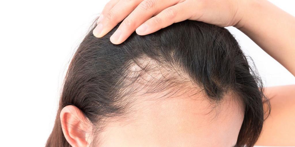 Типы выпадения волос у женщин