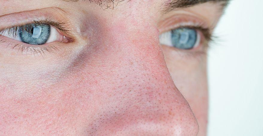 Как снять воспаление прыща на лице быстро и безболезненно?