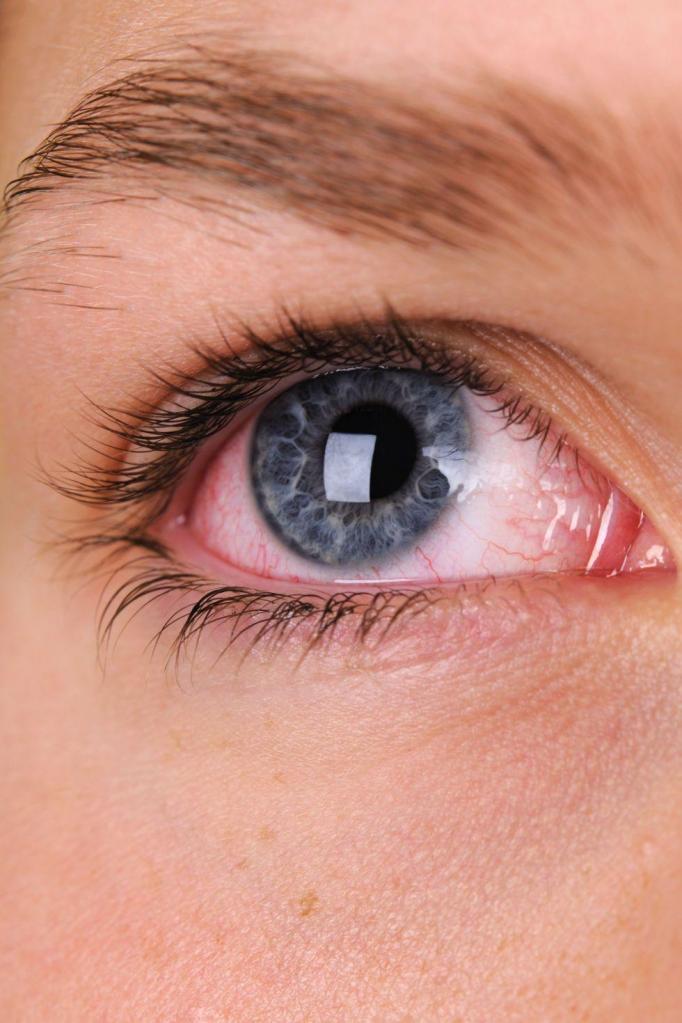 глазное давление симптомы и лечение народными средствами ...