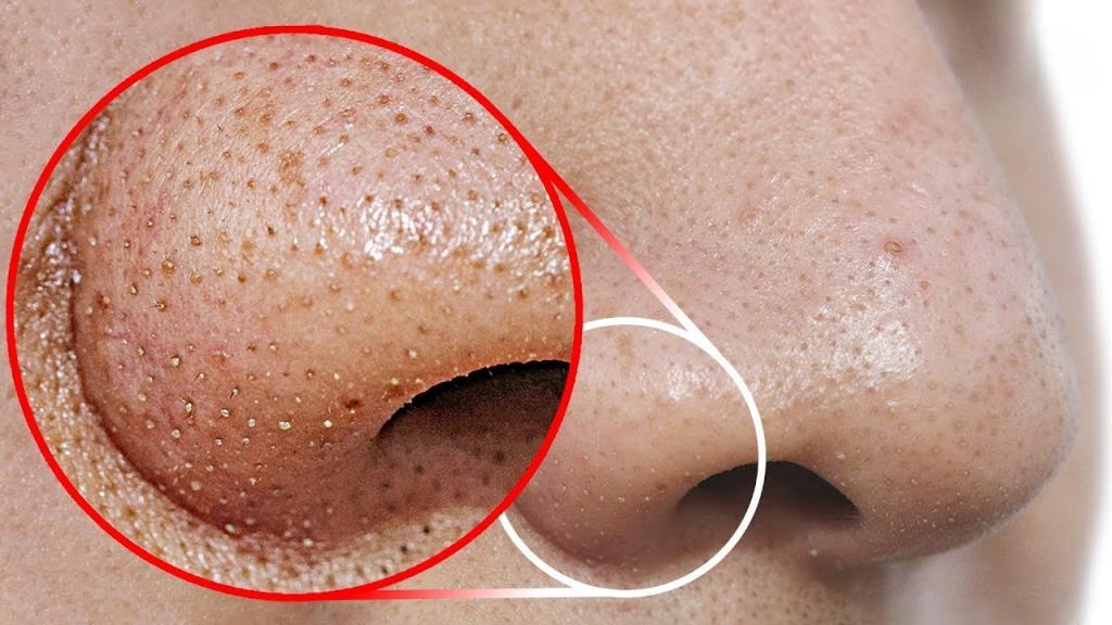 Средство от черных точек на носу